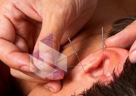 Иголки для похудения в уши - netkiloru